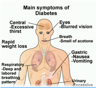 Common symptoms of type 1 diabetes